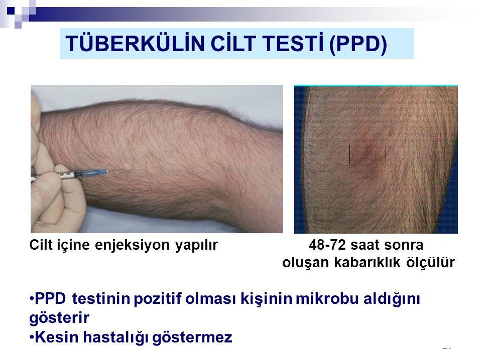 27 TÜBERKÜLİN CİLT TESTİ (PPD) Cilt içine enjeksiyon yapılır 48-72 saat sonra oluşan kabarıklık ölçülür •PPD testinin pozitif olması kişinin mikrobu a