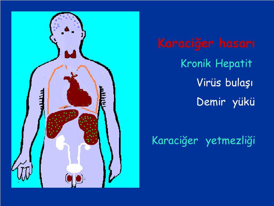 Karaciğer hasarı Kronik Hepatit Virüs bulaşı Demir yükü Karaciğer yetmezliği