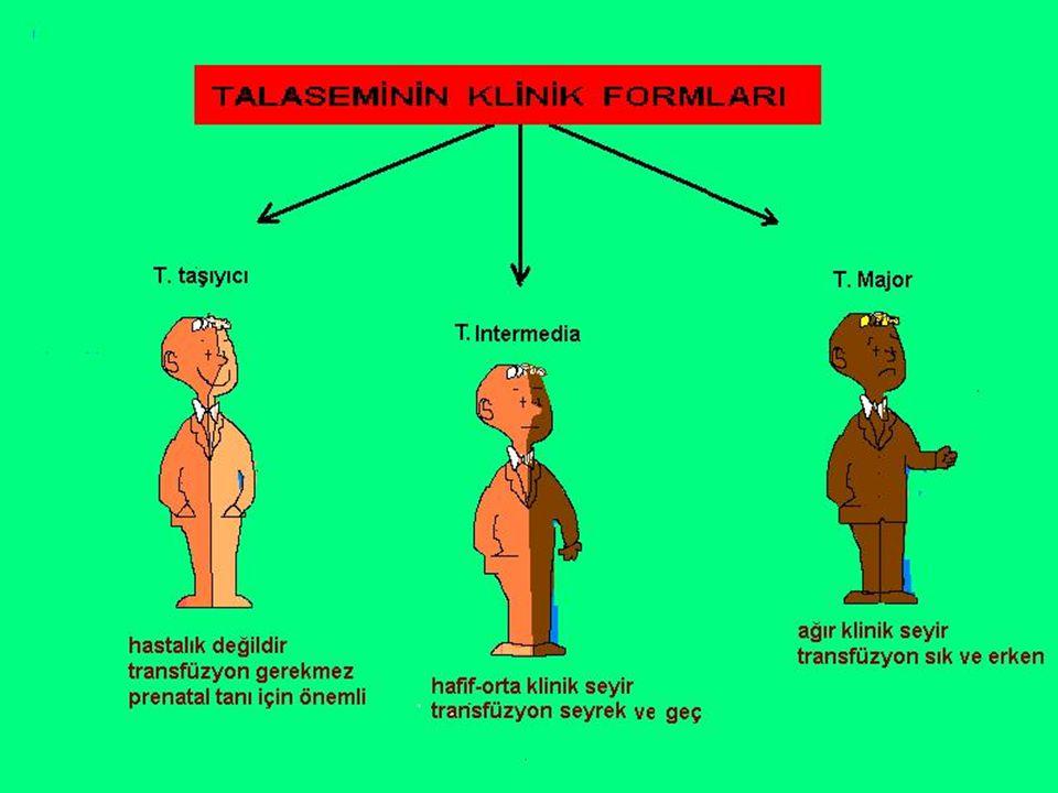 TANI TANI Normal erişkin hemoglobininin yapılamaması veya yetersiz yapılması ile karekterizedir.