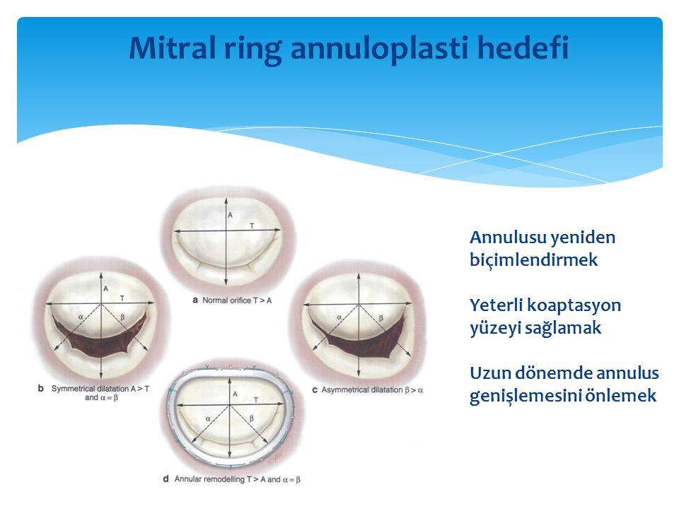 Mitral ring annuloplasti hedefi Annulusu yeniden biçimlendirmek Yeterli koaptasyon yüzeyi sağlamak Uzun dönemde annulus genişlemesini önlemek