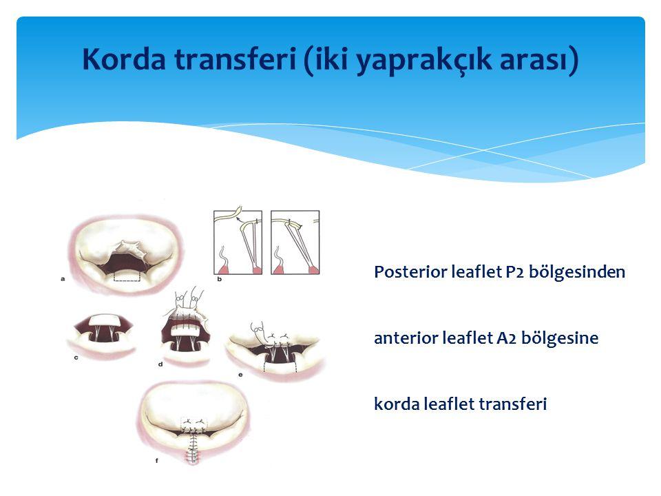 Posterior leaflet P2 bölgesinden anterior leaflet A2 bölgesine korda leaflet transferi Korda transferi (iki yaprakçık arası)