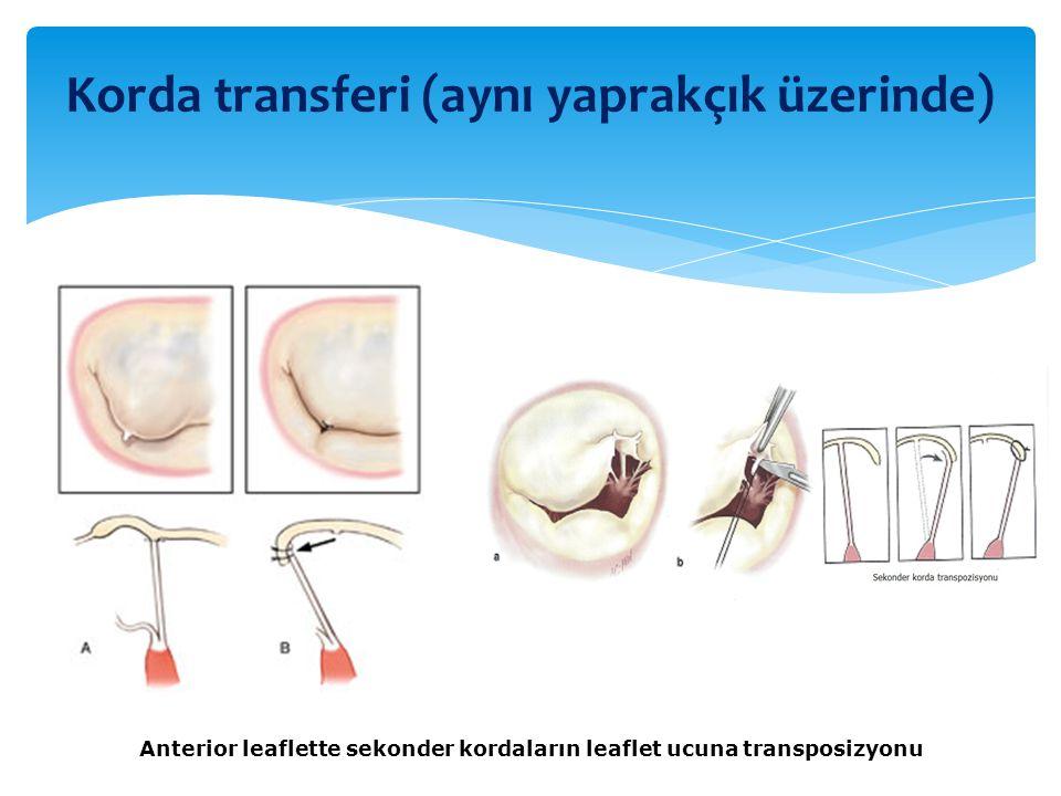 Anterior leaflette sekonder kordaların leaflet ucuna transposizyonu Korda transferi (aynı yaprakçık üzerinde)