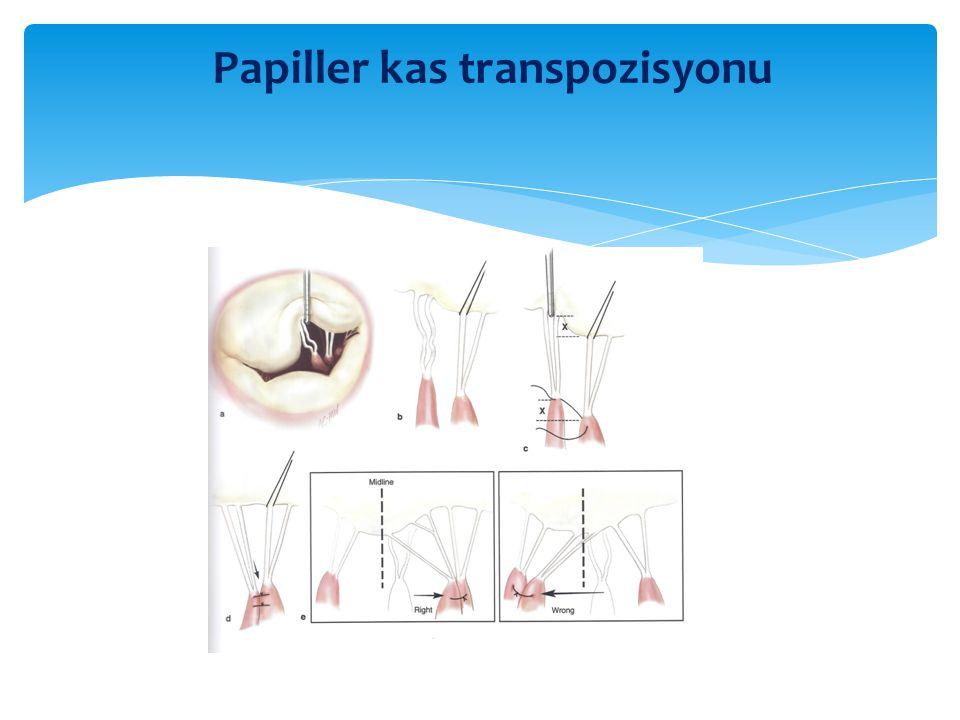 Papiller kas transpozisyonu