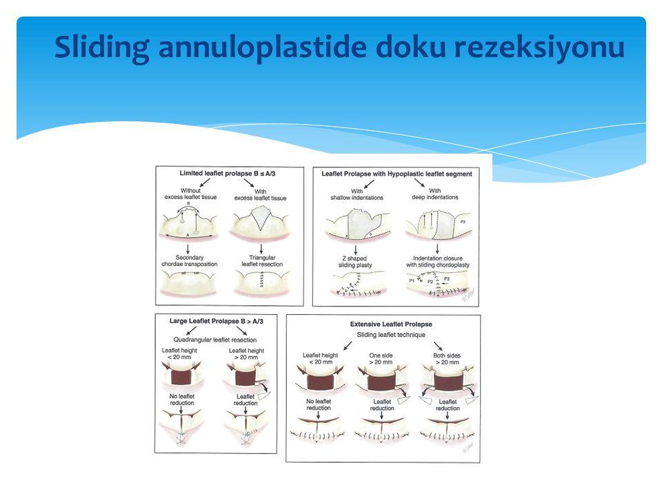 Sliding annuloplastide doku rezeksiyonu