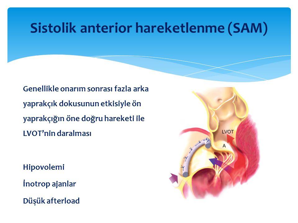 Sistolik anterior hareketlenme (SAM) Genellikle onarım sonrası fazla arka yaprakçık dokusunun etkisiyle ön yaprakçığın öne doğru hareketi ile LVOT'nin