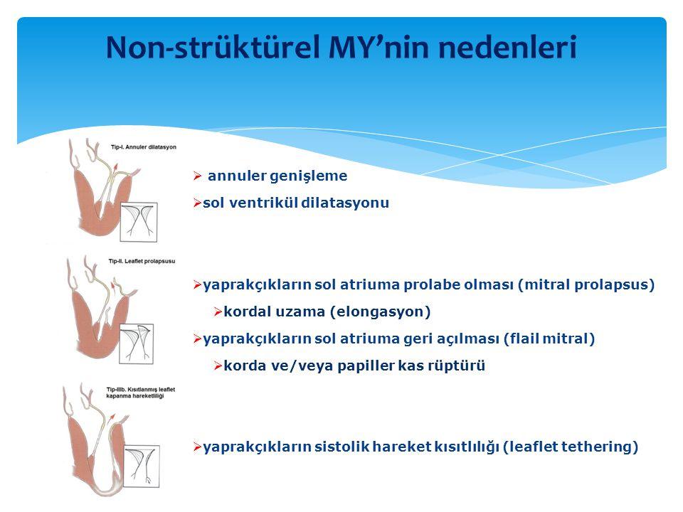 Non-strüktürel MY'nin nedenleri  annuler genişleme  sol ventrikül dilatasyonu  yaprakçıkların sol atriuma prolabe olması (mitral prolapsus)  korda