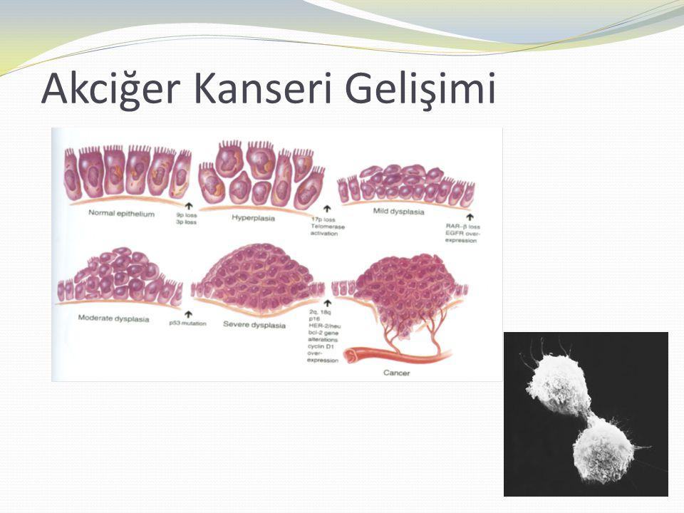 Akciğer kanserinde semptom ve bulgular  Primer tümörün büyümesi  Tümörün mediastene bölgesel yayılımı  Tümörün sistemik yayılımı  Paraneoplastik sendromların oluşumuna bağlı semptom ve bulgular.