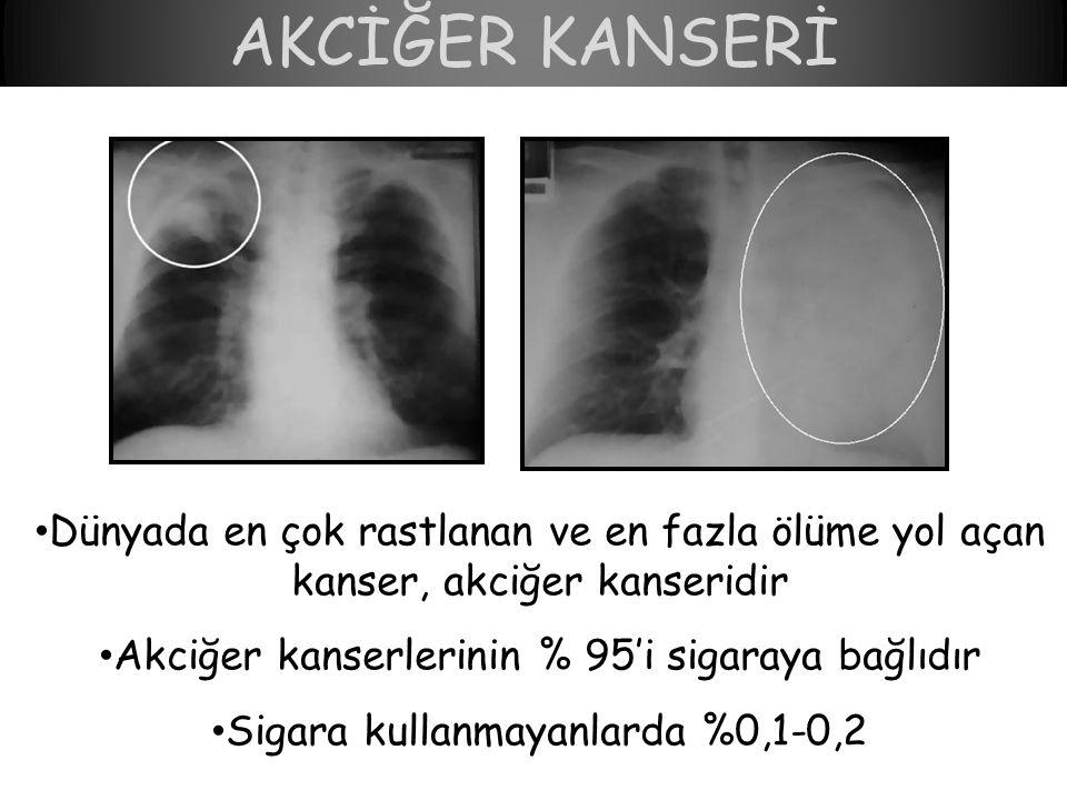 AKCİĞER KANSERİ • Dünyada en çok rastlanan ve en fazla ölüme yol açan kanser, akciğer kanseridir • Akciğer kanserlerinin % 95'i sigaraya bağlıdır • Sigara kullanmayanlarda %0,1-0,2