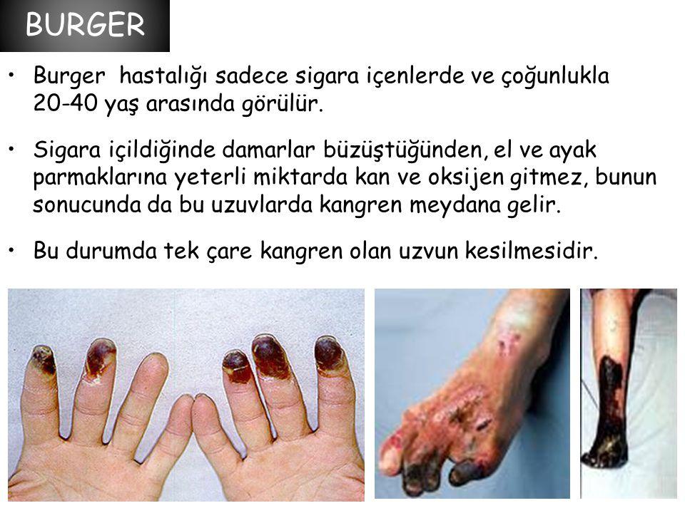 •Burger hastalığı sadece sigara içenlerde ve çoğunlukla 20-40 yaş arasında görülür. •Sigara içildiğinde damarlar büzüştüğünden, el ve ayak parmakların