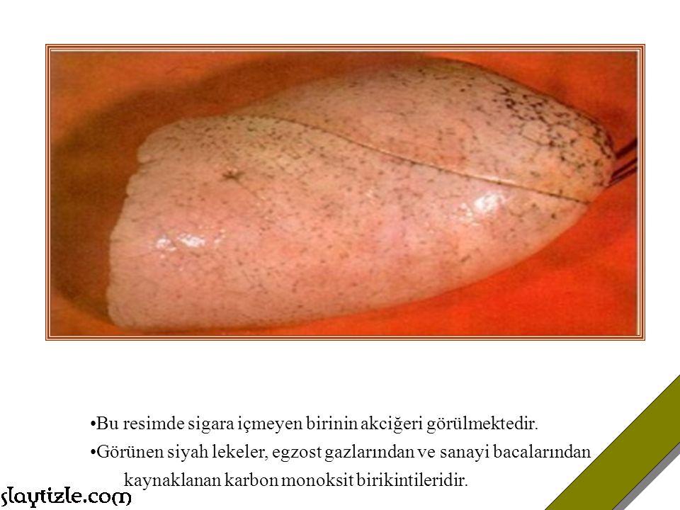 NNK Vücudun herhangi bir organında kanser meydana gelmesi için tek bir hücrenin hasar görmesi yeterlidir. Sigara da bulunan binlerce kimyasaldan bir t
