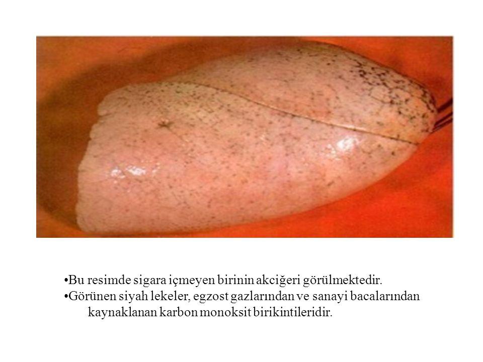 •Bu resimde sigara içmeyen birinin akciğeri görülmektedir. •Görünen siyah lekeler, egzost gazlarından ve sanayi bacalarından kaynaklanan karbon monoks