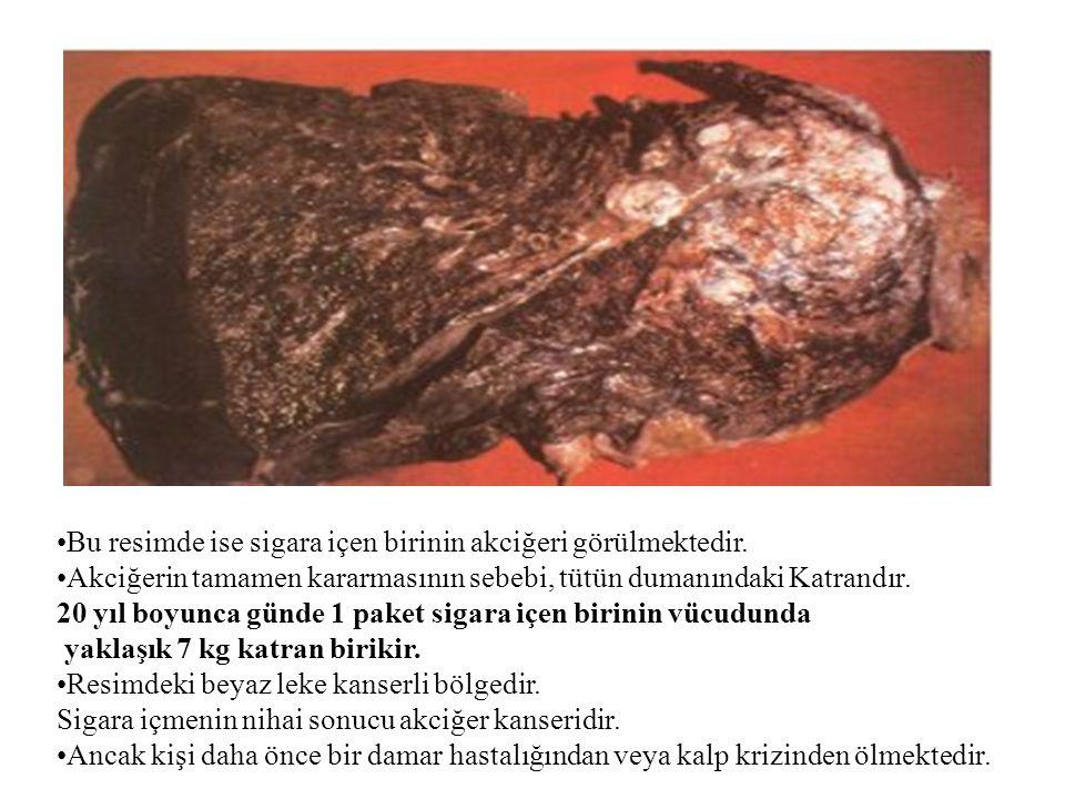 •Bu resimde ise sigara içen birinin akciğeri görülmektedir. •Akciğerin tamamen kararmasının sebebi, tütün dumanındaki Katrandır. 20 yıl boyunca günde