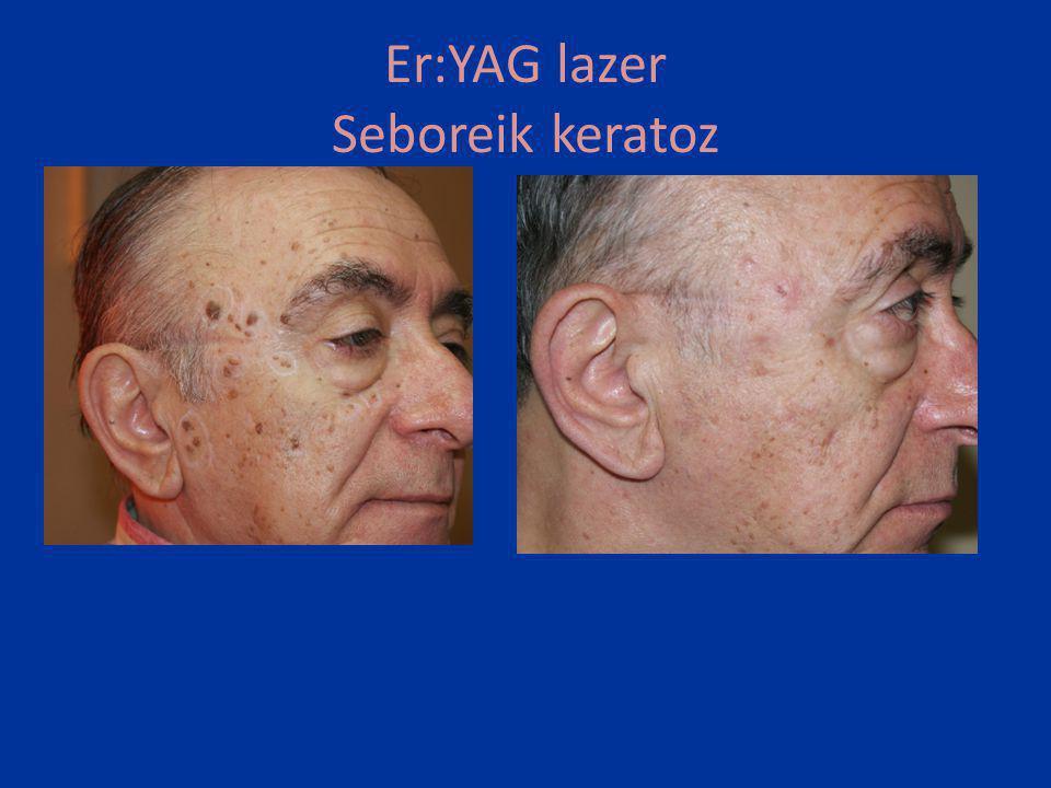 Er:YAG lazer Akne skar