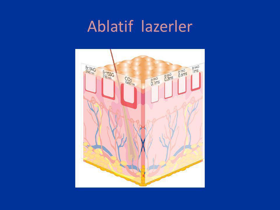 • Lazerin enerjisi ablasyon derinliğini belirler.