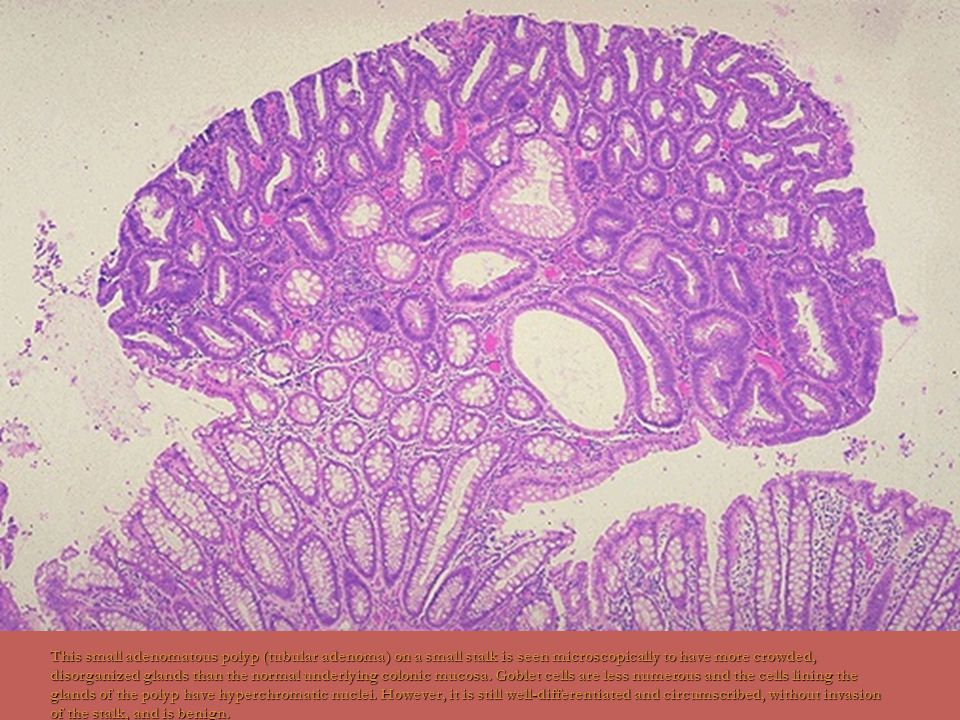 This small adenomatous polyp (tubular adenoma) on a small stalk is seen microscopically to have more crowded, disorganized glands than the normal unde