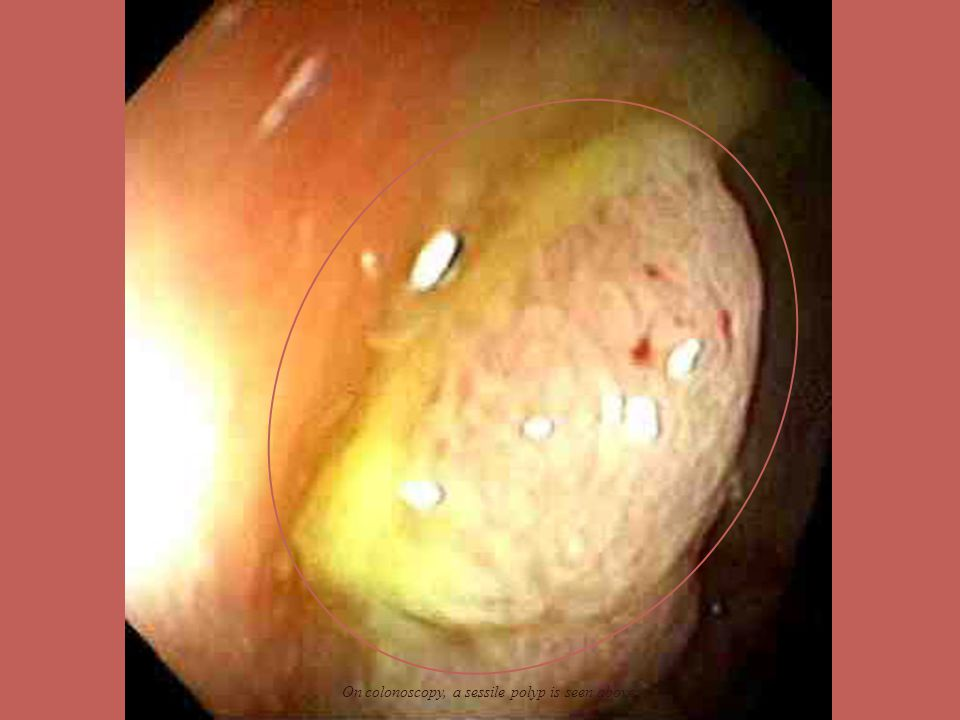 On colonoscopy, a sessile polyp is seen above