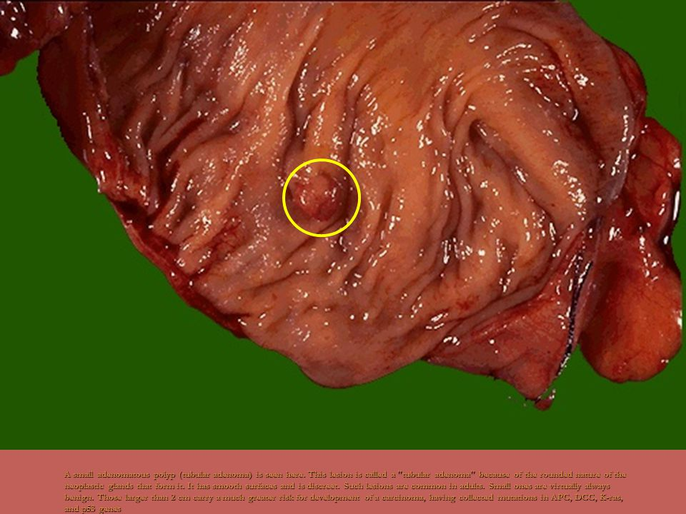 The colonoscopic appearance of rectal polyps that proved to be tubular adenomas are seen above