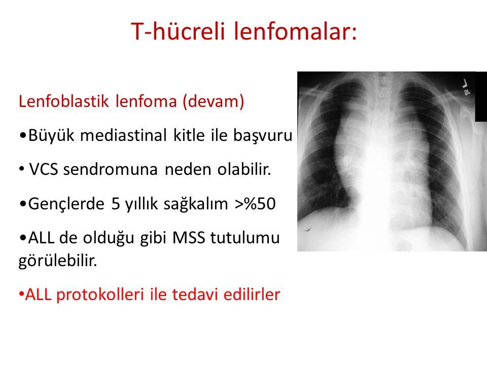 Lenfoblastik lenfoma (devam) •Büyük mediastinal kitle ile başvuru • VCS sendromuna neden olabilir. •Gençlerde 5 yıllık sağkalım >%50 •ALL de olduğu gi