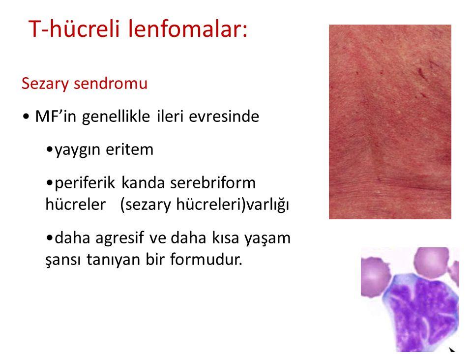T-hücreli lenfomalar: Sezary sendromu • MF'in genellikle ileri evresinde •yaygın eritem •periferik kanda serebriform hücreler (sezary hücreleri)varlığ