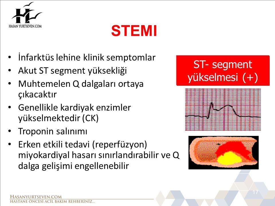 17 • İnfarktüs lehine klinik semptomlar • Akut ST segment yüksekliği • Muhtemelen Q dalgaları ortaya çıkacaktır • Genellikle kardiyak enzimler yükselm