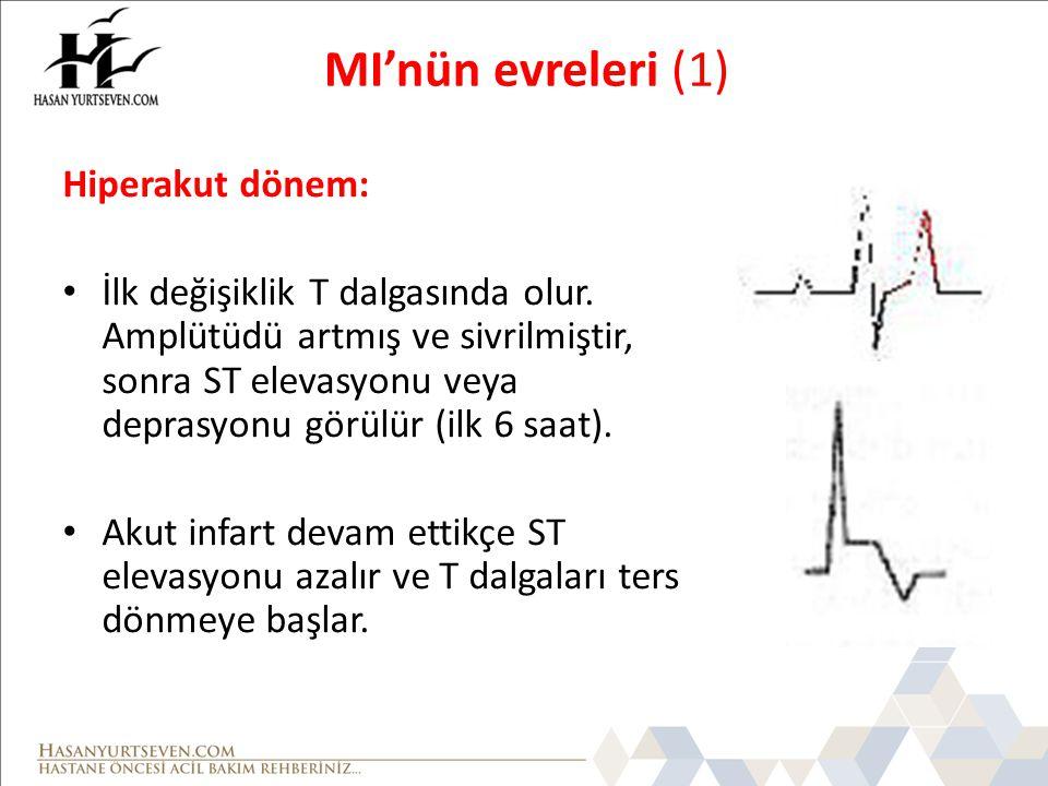 MI'nün evreleri (1) Hiperakut dönem: • İlk değişiklik T dalgasında olur. Amplütüdü artmış ve sivrilmiştir, sonra ST elevasyonu veya deprasyonu görülür