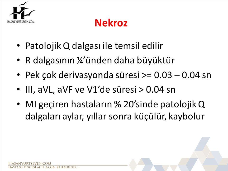 Nekroz • Patolojik Q dalgası ile temsil edilir • R dalgasının ¼'ünden daha büyüktür • Pek çok derivasyonda süresi >= 0.03 – 0.04 sn • III, aVL, aVF ve