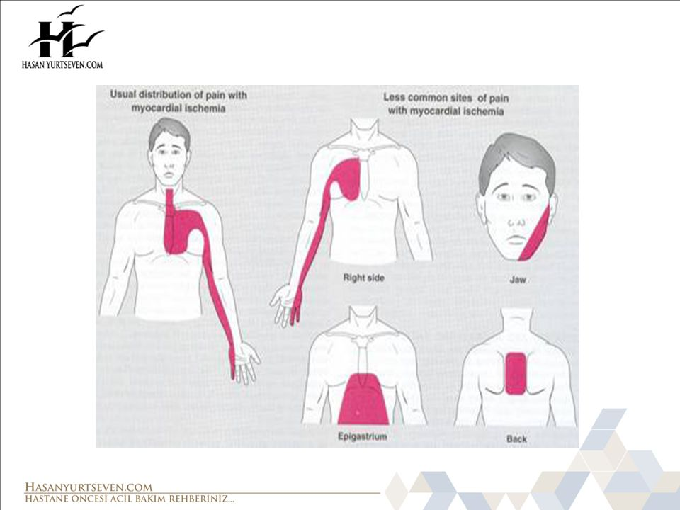 Akut Koroner Sendrom AKS Belirti ve Bulguları olan hasta 12 Derivasyonlu EKG ST elevasyonu >0.1 mV iki komşu ekstremite drv.
