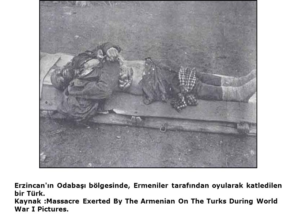 Erzincan'ın Odabaşı bölgesinde, Ermeniler tarafından oyularak katledilen bir Türk. Kaynak :Massacre Exerted By The Armenian On The Turks During World