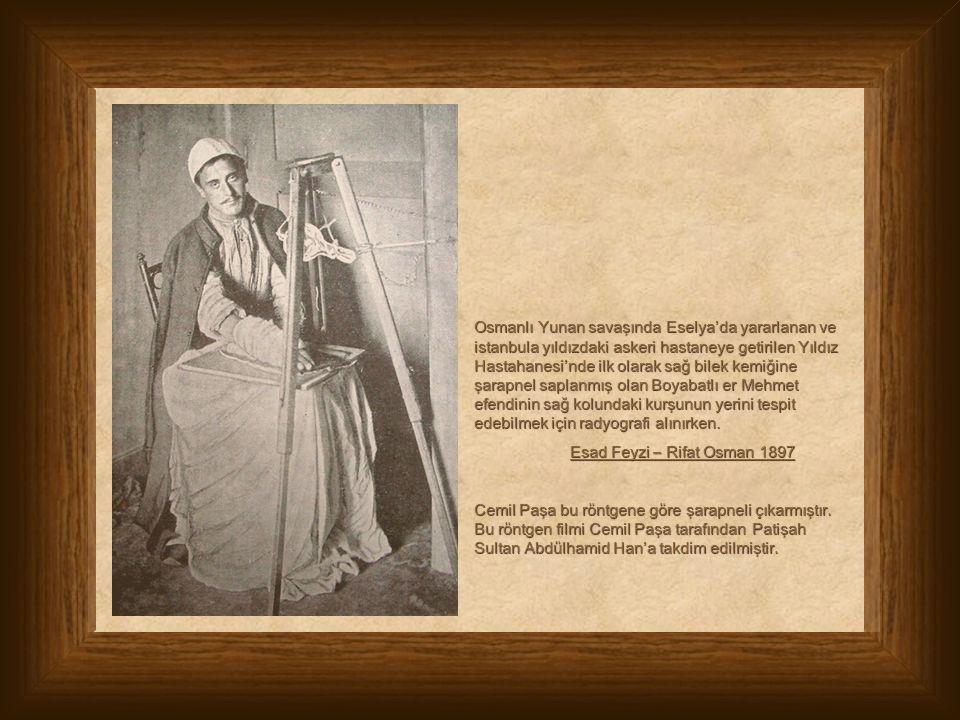 Osmanlı Yunan savaşında Eselya'da yararlanan ve istanbula yıldızdaki askeri hastaneye getirilen Yıldız Hastahanesi'nde ilk olarak sağ bilek kemiğine ş