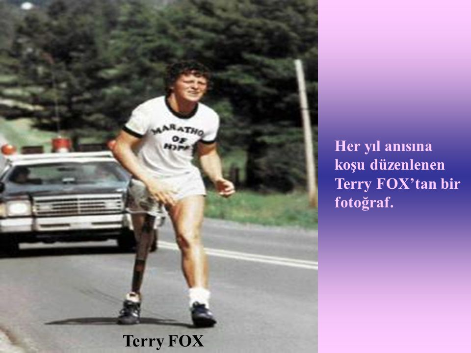 Terry FOX Her yıl anısına koşu düzenlenen Terry FOX'tan bir fotoğraf.