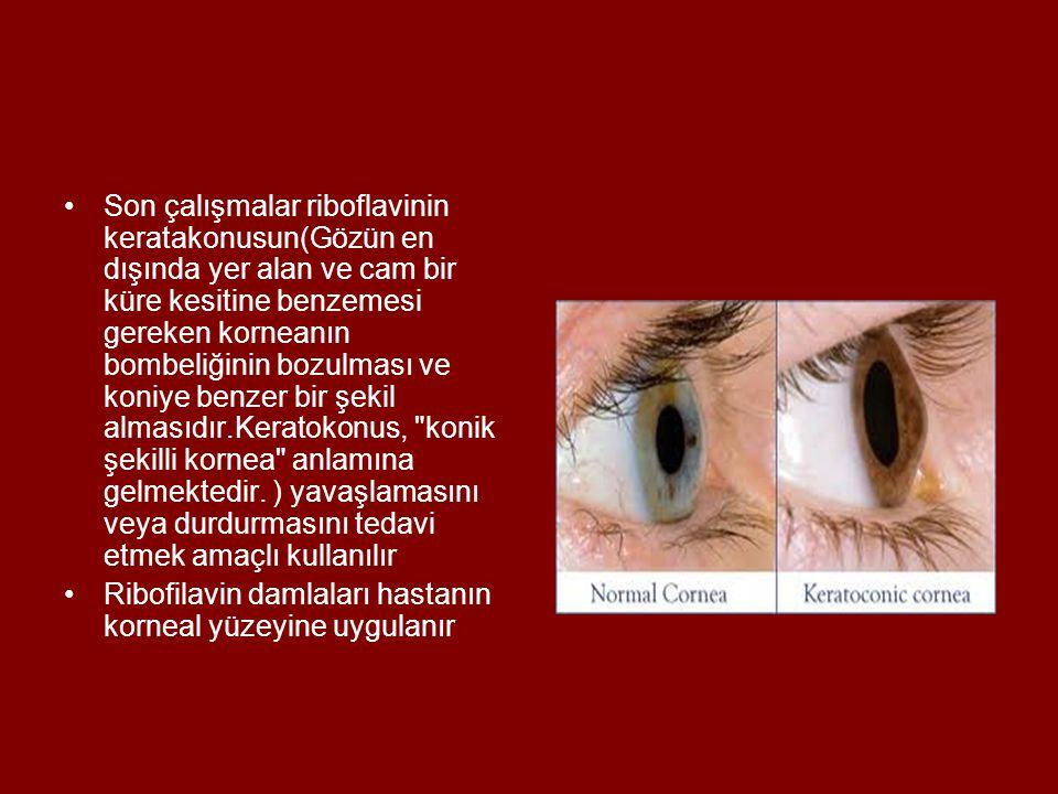 •Son çalışmalar riboflavinin keratakonusun(Gözün en dışında yer alan ve cam bir küre kesitine benzemesi gereken korneanın bombeliğinin bozulması ve ko