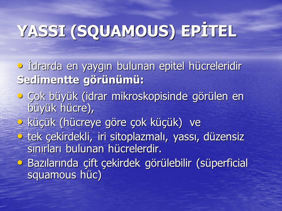 YASSI (SQUAMOUS) EPİTEL YASSI (SQUAMOUS) EPİTEL • İdrarda en yaygın bulunan epitel hücreleridir Sedimentte görünümü: • Çok büyük (idrar mikroskopisinde görülen en büyük hücre), • küçük (hücreye göre çok küçük) ve • tek çekirdekli, iri sitoplazmalı, yassı, düzensiz sınırları bulunan hücrelerdir.