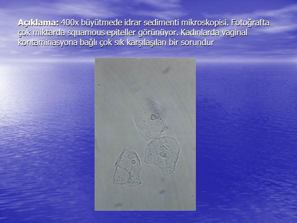 Açıklama: 400x büyütmede idrar sedimenti mikroskopisi. Fotoğrafta çok miktarda squamous epiteller görünüyor. Kadınlarda vaginal kontaminasyona bağlı ç