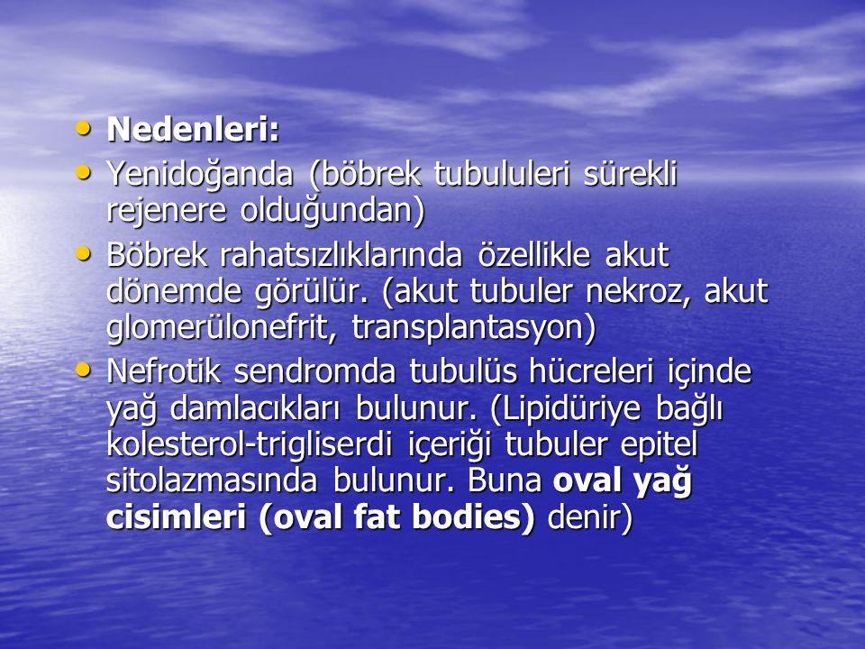 • Nedenleri: • Yenidoğanda (böbrek tubululeri sürekli rejenere olduğundan) • Böbrek rahatsızlıklarında özellikle akut dönemde görülür. (akut tubuler n