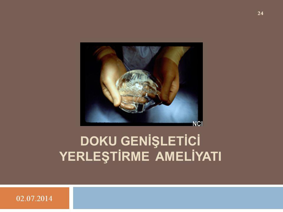 DOKU GENİŞLETİCİ YERLEŞTİRME AMELİYATI 02.07.2014 24