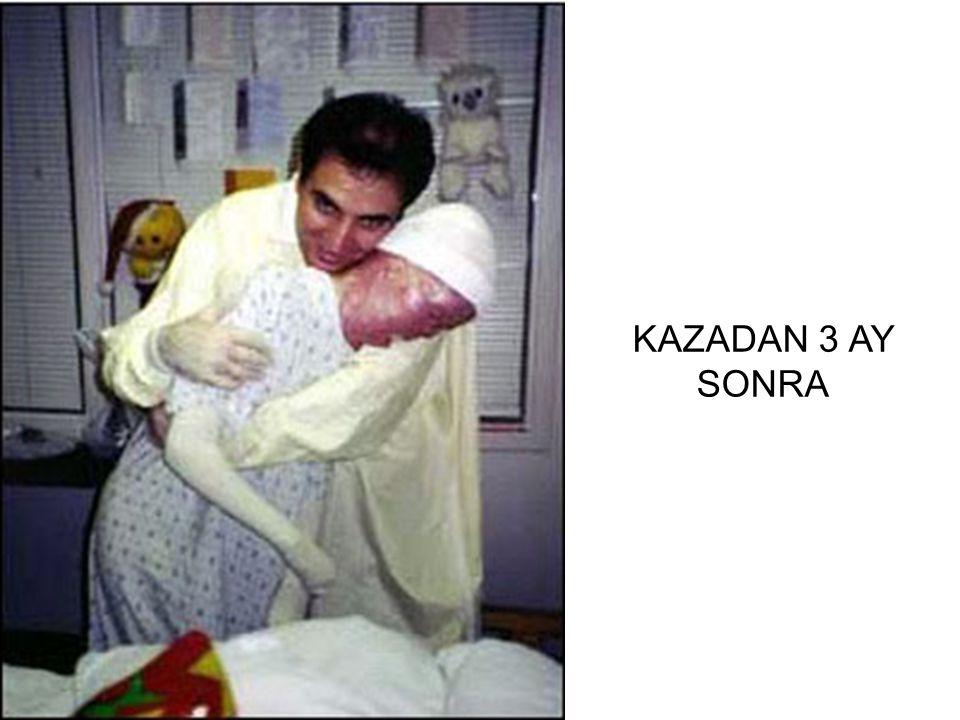 KAZADAN 3 AY SONRA