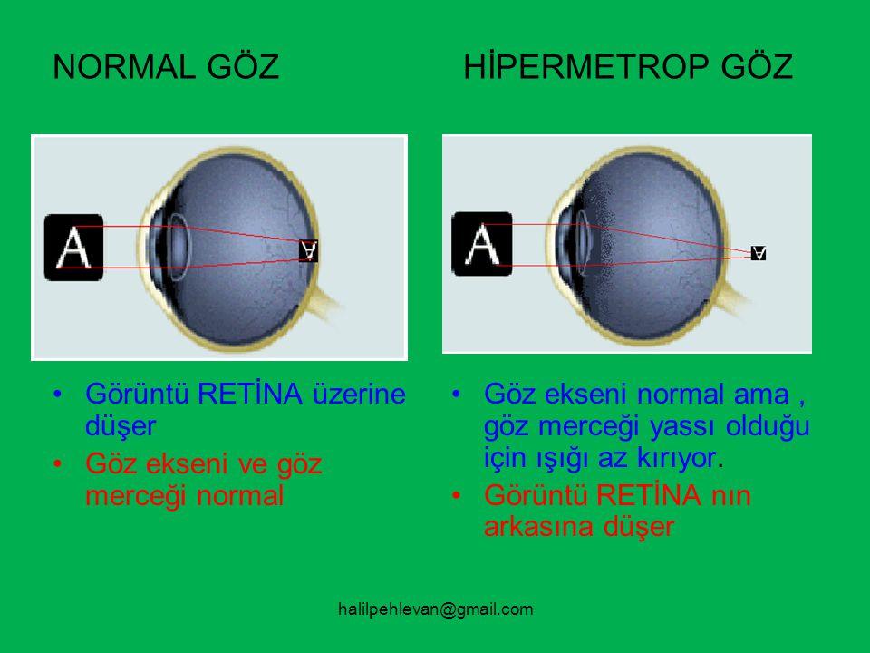 halilpehlevan@gmail.com NORMAL GÖZ HİPERMETROP GÖZ •Göz ekseni ve göz merceği normal.