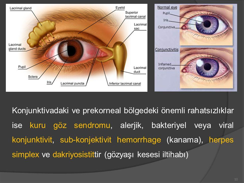 Konjunktivadaki ve prekorneal bölgedeki önemli rahatsızlıklar ise kuru göz sendromu, alerjik, bakteriyel veya viral konjunktivit, sub-konjektivit hemorrhage (kanama), herpes simplex ve dakriyosistittir (gözyaşı kesesi iltihabı) 10