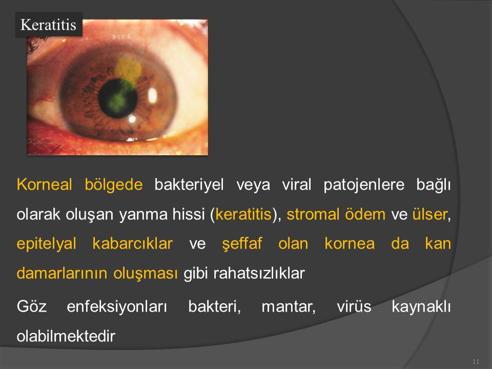 Korneal bölgede bakteriyel veya viral patojenlere bağlı olarak oluşan yanma hissi (keratitis), stromal ödem ve ülser, epitelyal kabarcıklar ve şeffaf olan kornea da kan damarlarının oluşması gibi rahatsızlıklar Göz enfeksiyonları bakteri, mantar, virüs kaynaklı olabilmektedir Keratitis 11
