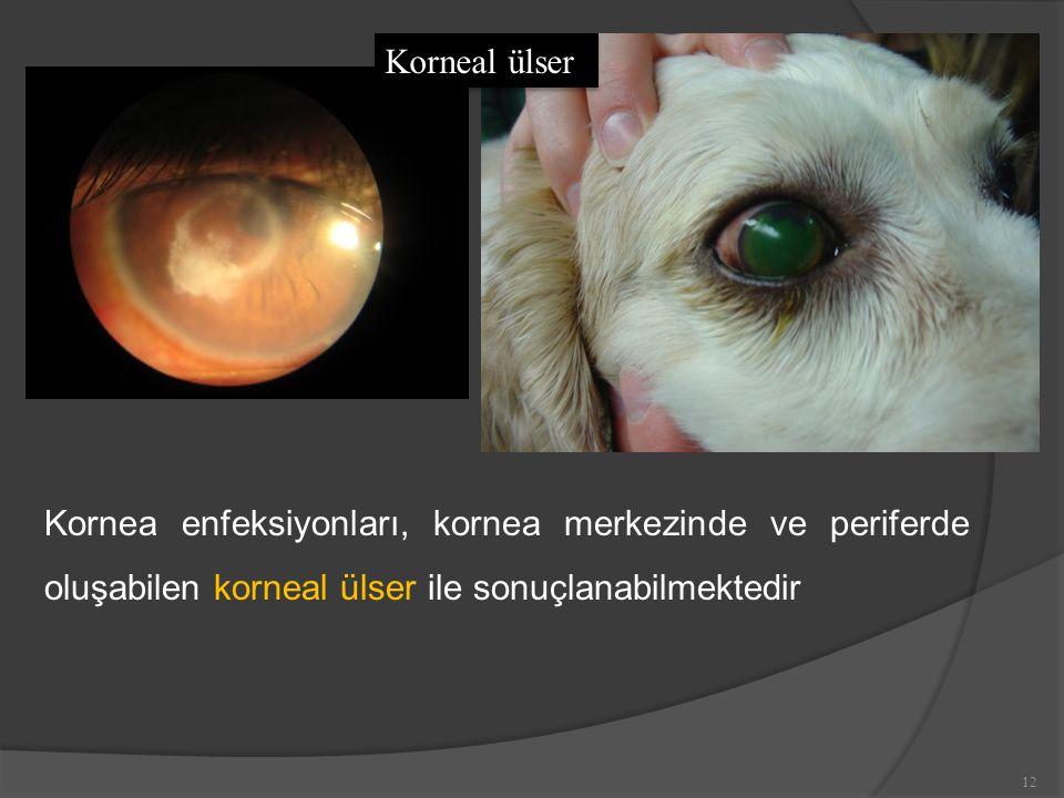 Kornea enfeksiyonları, kornea merkezinde ve periferde oluşabilen korneal ülser ile sonuçlanabilmektedir Korneal ülser 12