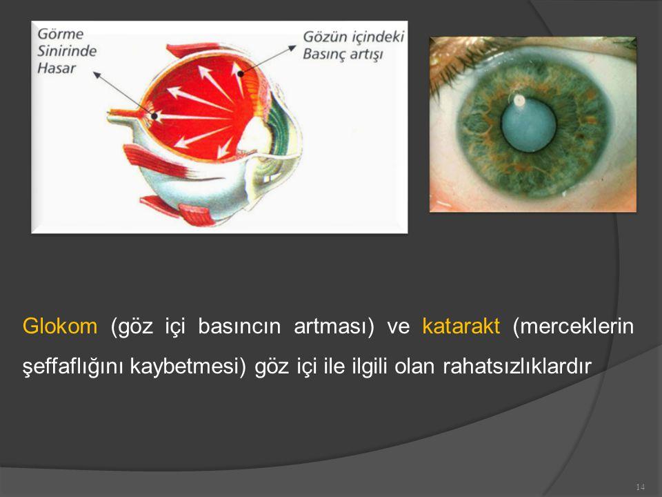 Glokom (göz içi basıncın artması) ve katarakt (merceklerin şeffaflığını kaybetmesi) göz içi ile ilgili olan rahatsızlıklardır 14