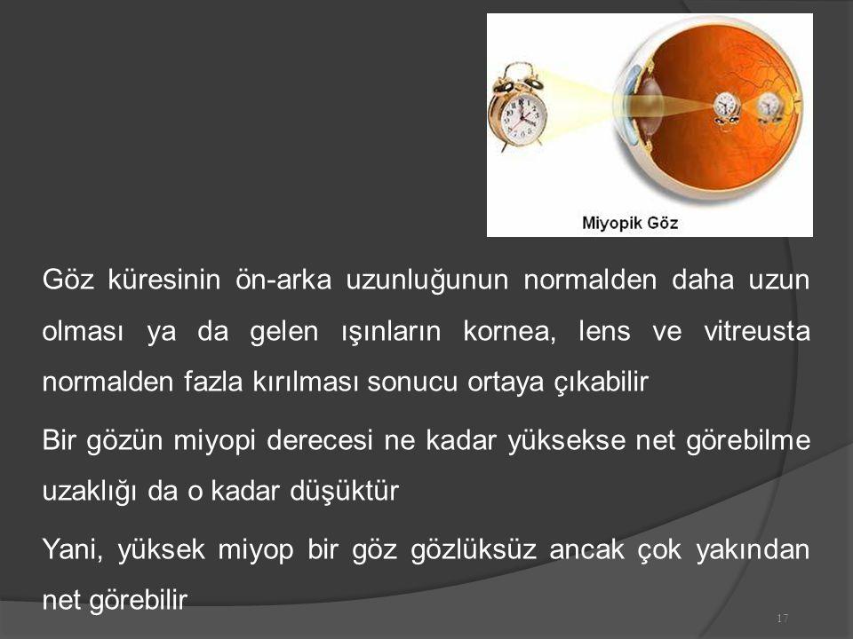 Göz küresinin ön-arka uzunluğunun normalden daha uzun olması ya da gelen ışınların kornea, lens ve vitreusta normalden fazla kırılması sonucu ortaya çıkabilir Bir gözün miyopi derecesi ne kadar yüksekse net görebilme uzaklığı da o kadar düşüktür Yani, yüksek miyop bir göz gözlüksüz ancak çok yakından net görebilir 17