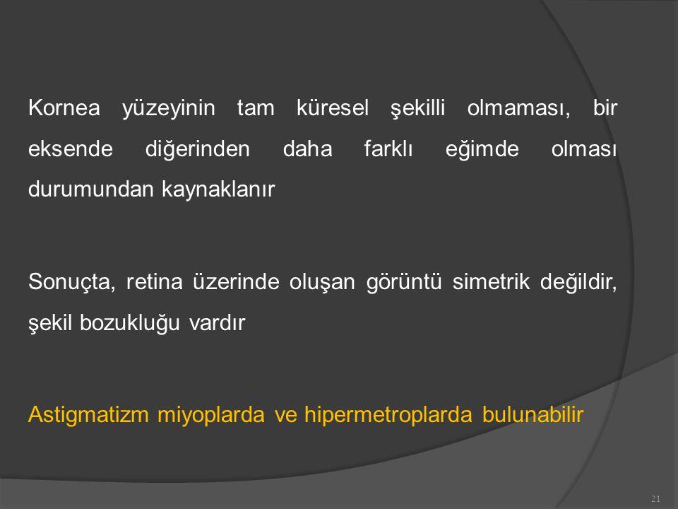 Kornea yüzeyinin tam küresel şekilli olmaması, bir eksende diğerinden daha farklı eğimde olması durumundan kaynaklanır Sonuçta, retina üzerinde oluşan görüntü simetrik değildir, şekil bozukluğu vardır Astigmatizm miyoplarda ve hipermetroplarda bulunabilir 21
