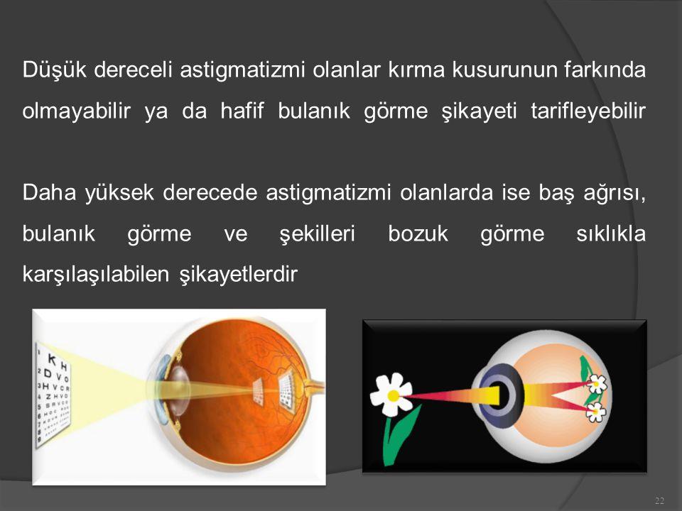 Düşük dereceli astigmatizmi olanlar kırma kusurunun farkında olmayabilir ya da hafif bulanık görme şikayeti tarifleyebilir Daha yüksek derecede astigmatizmi olanlarda ise baş ağrısı, bulanık görme ve şekilleri bozuk görme sıklıkla karşılaşılabilen şikayetlerdir 22