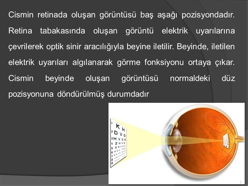 Cismin retinada oluşan görüntüsü baş aşağı pozisyondadır.