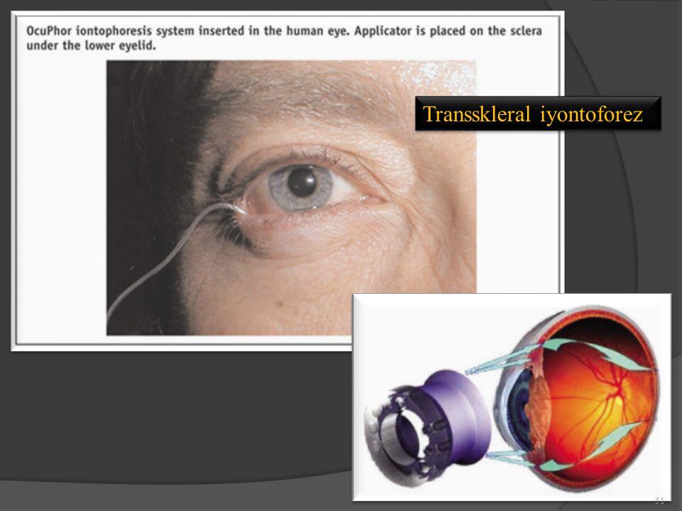 Transskleral iyontoforez 51