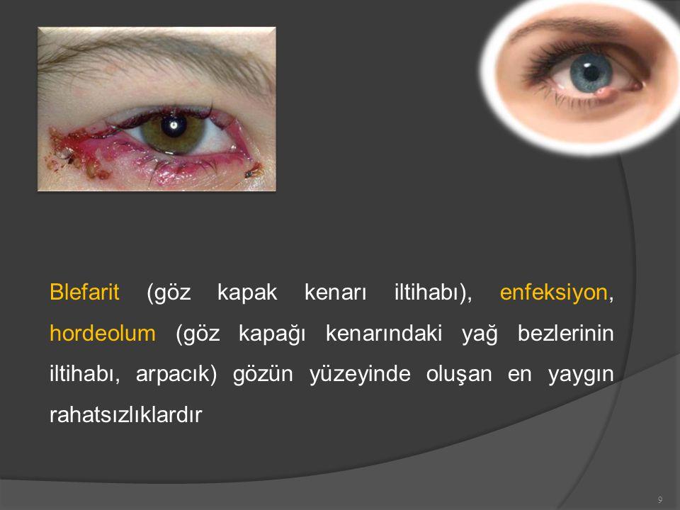Blefarit (göz kapak kenarı iltihabı), enfeksiyon, hordeolum (göz kapağı kenarındaki yağ bezlerinin iltihabı, arpacık) gözün yüzeyinde oluşan en yaygın rahatsızlıklardır 9
