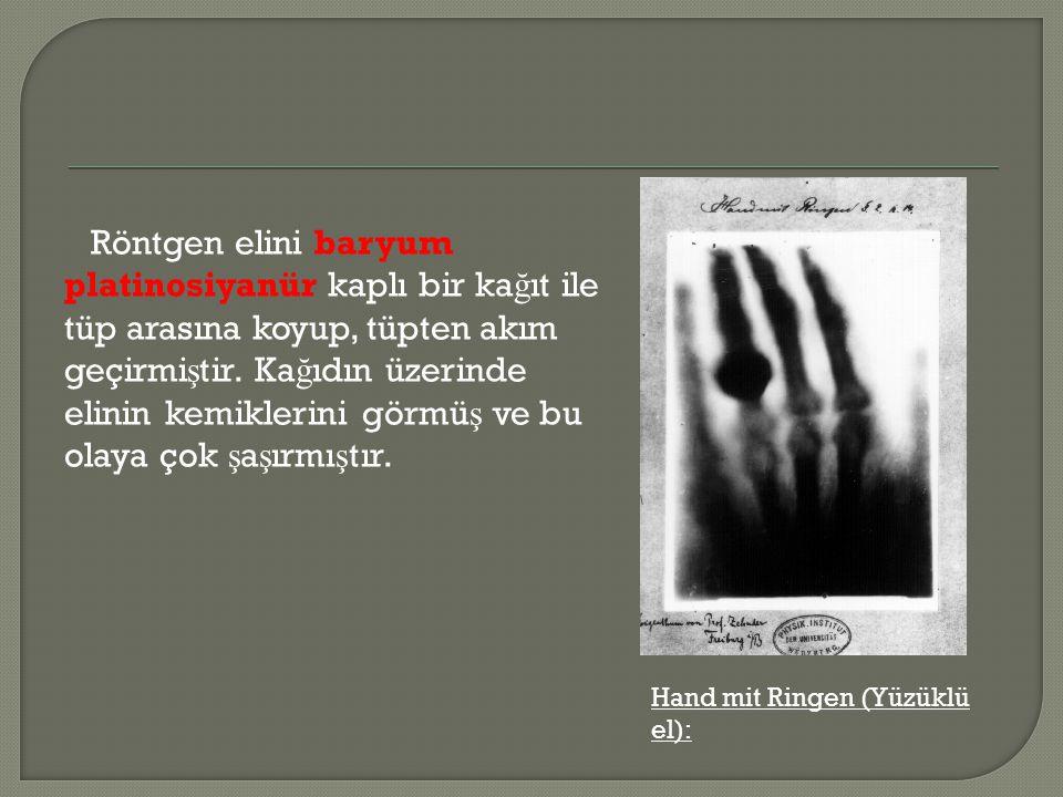 Röntgen elini baryum platinosiyanür kaplı bir ka ğ ıt ile tüp arasına koyup, tüpten akım geçirmi ş tir. Ka ğ ıdın üzerinde elinin kemiklerini görmü ş