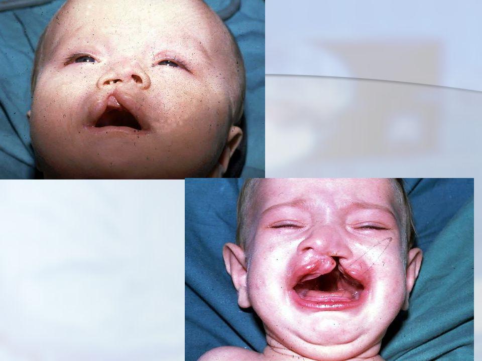 Sınıflandırma  Alveoler ark temel olarak alınırsa (Davies- Ritchie 1922)  Prealveoler (yarık dudak)  Postalveoler (yarık damak)  Transalveoler (yarık dudak-damak)  Embriyolojik temele göre (Kernehan- Stark 1958)  Primer damak yarığı (insiziv foramen önünde)  Sekonder damak yarığı (insiziv foramen arkasında)