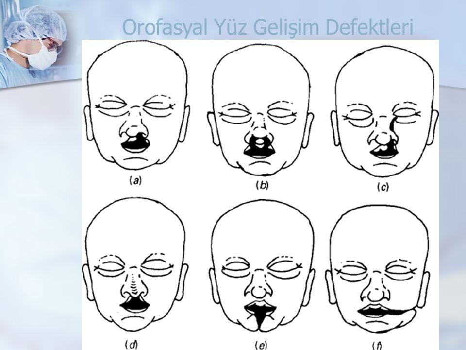 Orofasyal Yüz Gelişim Defektleri